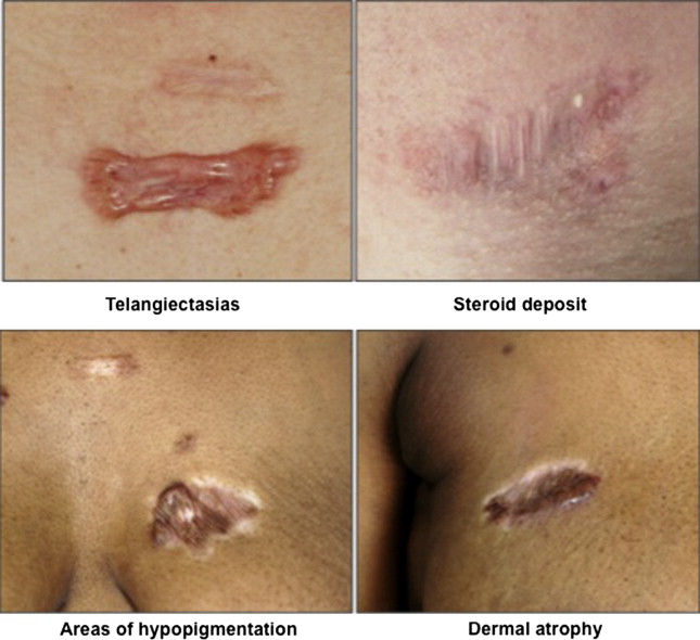 New Insights On Keloids, Hypertrophic Scars, And Striae
