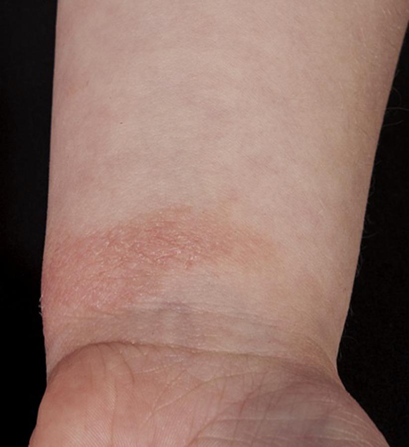 Management of Atopic Hand Dermatitis - Dermatologic Clinics